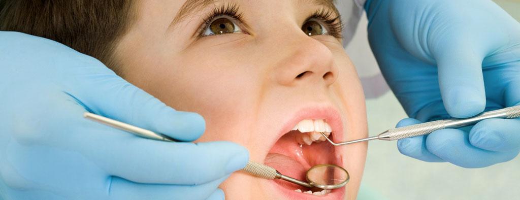 ortodonzia-pediatrica-ventimiglia