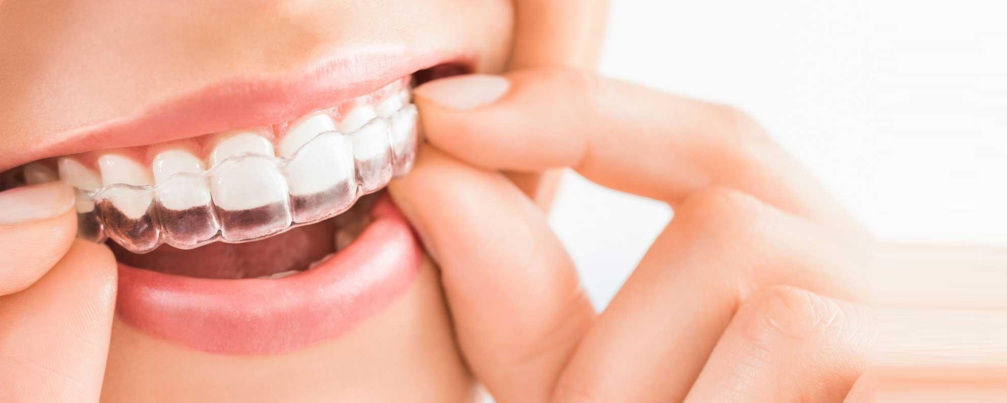ortodonzia-ventimiglia